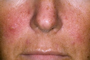 Symptoms of psoriasis in the face