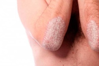 Psoriasis on the elbows