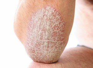 the main manifestations of psoriasis